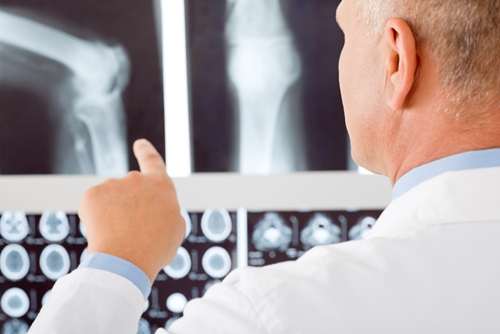 Xrays-can-help-identify-bone-breaks