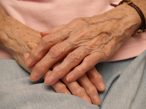Age and gender can be risk factors for arthritis.