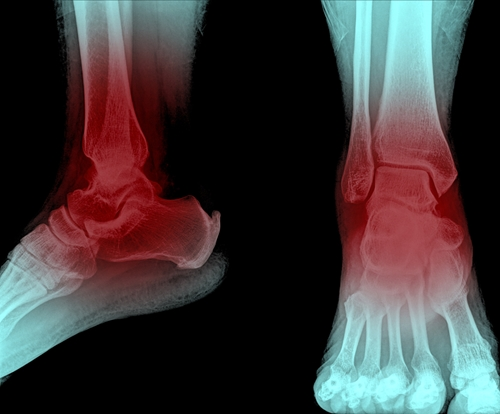 Heel pain can be debilitating.
