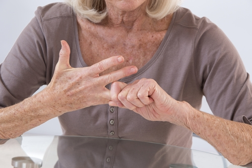 Arthritis in the hands in a painful condition.
