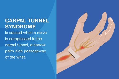 5 carpal tunnel relief products you need at work